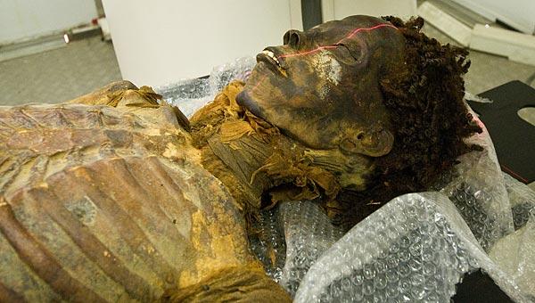 NOVA ORLEANS, EUA — O primeiro caso conhecido de obstrução arterial ou arteriosclerose foi encontrado na múmia de una princesa egípcia que viveu 1500 anos […]