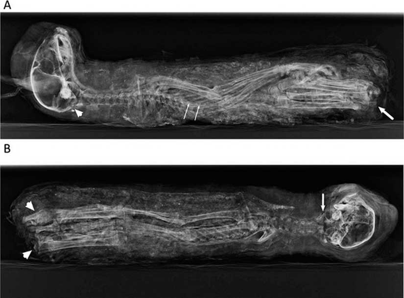 Há dois mil anos atrás um egípcio comprou um gatinho mumificado de um criador para oferecer como um sacrifício para a deusa Bastet, é o […]
